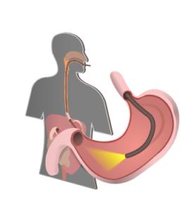 Diagnosing Eosinophilic Esophagitis
